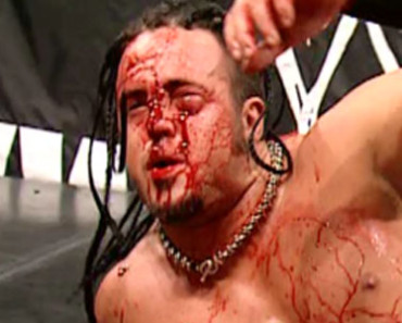 Top 10 Most Worst WWE Injuries Ever