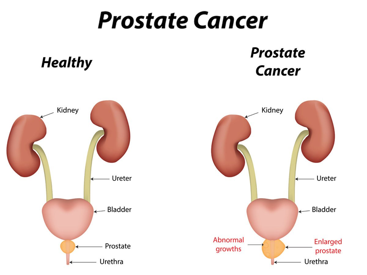 masturbate prostate massage prevent cancer blog